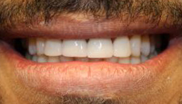 Smile after veneers and crown placement