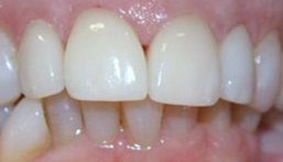 Smile after front veneers and dental crowns