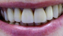 Smile after front dental crown placement