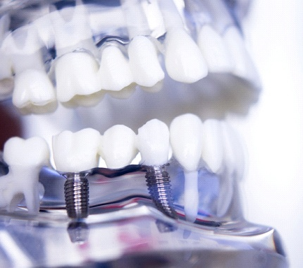 model of dental implants